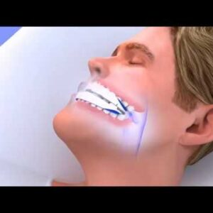 How to Stop Snoring | Best Snoring Solution That Actually Works!