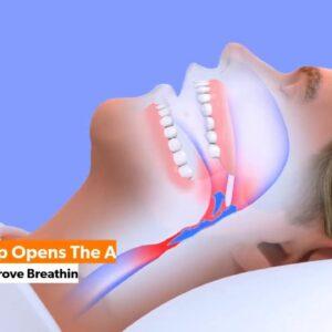 Snoring Device That Works - VitalSleep Anti-Snoring Device