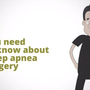Top 10 Things You Need to Know About  Sleep Apnea Surgery
