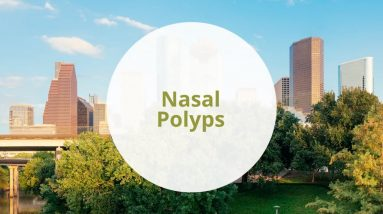 Nasal Polyposis (Nasal Polyps)